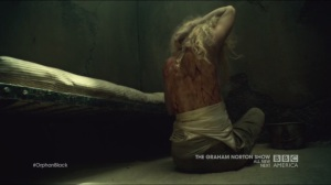 Scarred by Many Past Frustrations- Helena's scarred back