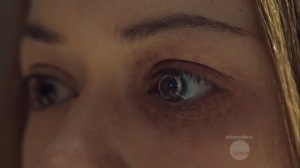 History Yet to be Written- Rachel's new eye