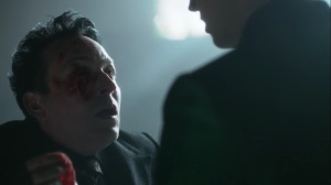 They Did What- Oswald asks Ed how his injured eye looks- Gotham, Fox